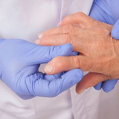 Osteoarthritis (OA) is a degenerative joint condition in which cartilage wears away. Learn about possible causes such as age, heredity, and sports injuries.