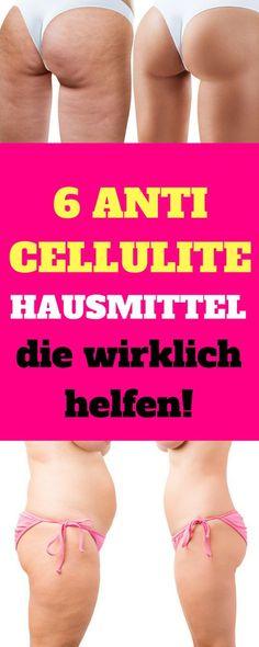 Die erfolgreichsten Hausmittel gegen Cellulite. Du willst Cellulite schnell loswerden. Dann vermeide Lebensmittel, die die Orangenhaus begünstigen. Cellulite entfernen Hausmittel, Cellulite entfernen deutsch, Cellulite entfernen Kaffee, Cellulite schnell entfernen, Cellulite entfernen Beine Bauch Po, Cellulite entfernen kokosöl, Cellulite Übungen, was hilft gegen Cellulite, Cellulite Sportübungen, anti cellulite hausmittel, #abnehmen #diät