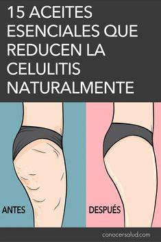 15 aceites esenciales que reducen la celulitis naturalmente #salud