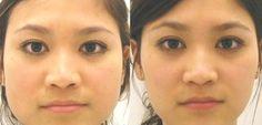 Nuestro rostro también tiende acumular grasa, especialmenteen las mejillas, formando así un rostro redondito. Sin embargo, también existen ejercicios