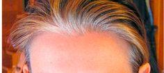 Efectivo remedio natural para eliminar las canas  Las canas aparecen cuando la melanina se va perdiendo la cual es la molécula encargada de darle color al pelo. El tema es cómo eliminar las canas, ya se
