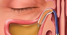 25 Best Dent MD images in 2015 | Health, Health remedies