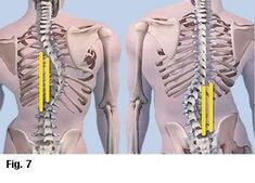 Read Later: Download this Post as PDF >> CLICK HERE According to the Scoliosis Research Society, degenerative spine disease is one of the most common reasons adults develop scoliosis.1 The greater the degree of deformity, the greater the unrelenting force of gravity (14.7 pounds per square inch) drags on the body's bony framework (Fig. 1). …