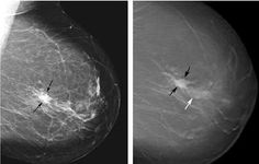 Natural Treatment For Breast Calcifications