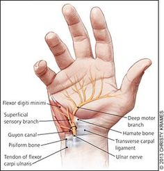Evaluation and Diagnosis of Wrist Pain: A Case-Based Approach - - American Family Physician Occupational Therapy, Physical Therapy, Wrist Anatomy, Wrist Pain, Medical Anatomy, Muscle Anatomy, Anatomy Study, Carpal Tunnel, Sports Medicine