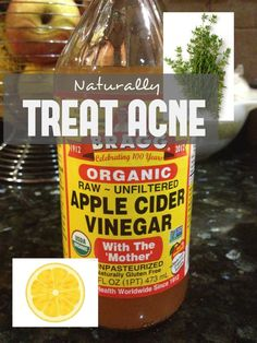 6 Tips to Reduce Acne Naturally