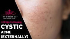 Cystic acne is the most severe form of acne. While acne is very common, cystic acne is relatively uncommon. Acne is not caused by chocolate, nuts or greasy food Greasy Skin, Greasy Food, Cystic Acne Essential Oil, Essential Oils, Cystic Acne On Chin, Hormonal Acne Remedies, Cystic Acne Treatment, Acne Causes, Acne Solutions