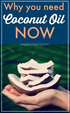The Health Benefits of Coconut Oil | HolisticSquid.com