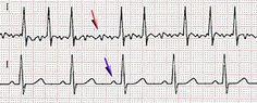 Fibrillation atriale — Wikipédia