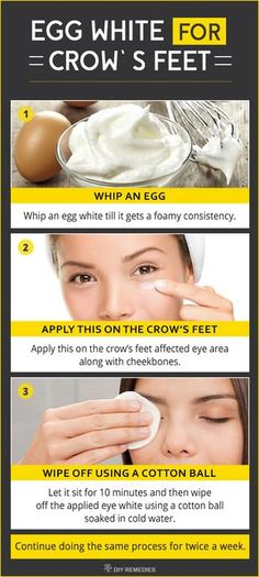 Best Remedies to Get Rid of Crow's Feet Egg white acts as a deep cleanser that removes all the chemical pollutants and grimes out the skin pores. It also has all essential nutrients, proteins and amino acids that tighten your skin to make it smooth and wrinkle free. #EggWhite #Crowsfeet #Wrinklefree