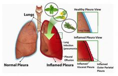 The warning signs of a lung infection include wheezing, coughing, chest tightening, and shortness of breath. Further signs include rapid heartbeat