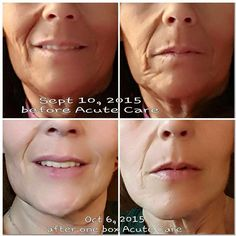 One month using Acute Care every three days