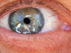 What Is the Best Vitamin for Macular Degeneration?