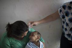 As babies stricken by Zika turn 1 health problems mount