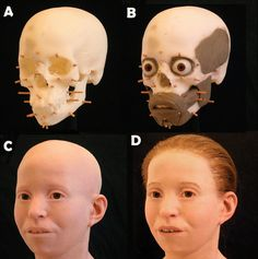 stage by stage the facial reconstruction of an 11-year-old girl whose skull was unearthed in excellent condition from a mass grave with victims of the Plague that struck Athens of 430 BC.