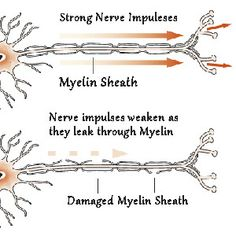 MS is characterized by damage to the myelin sheath, The myelin sheath supposed to sourround our nerves, protecting them and keeping the impulses they sendRead Low Vitamin B12, Vitamin B Complex, Natural Wart Remedies, Natural Cure For Arthritis, Warts Remedy, Gastrointestinal Disease, B12 Deficiency, Medical Field, Sciatica