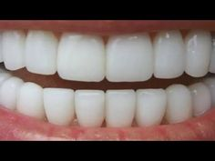 In just two minutes, yellow teeth will shine like pearls, this is the best homemade recipe. Natural Treatments, Natural Remedies, Dental Cosmetics, Dress Sewing Patterns, Creative Kids, 5 Minute Crafts, Dentistry, Skin Care Tips, Health And Beauty