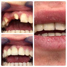 A gyönyörű mosolyt szeretne? Nincs akadálya! Cirkónium koronával elérheti. A modern esztétikai fogászat fejlesztésének az eredménye. Felkeltettem az érdeklődését? Keressen bízalommal bennünket! Hívjon a +36202320080-as telefonszámon, vagy írjona a: hermeszdentalteam@gmail.com-ra. Dental, Modern, Trendy Tree, Teeth, Dentist Clinic, Tooth, Dental Health