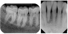 dental periapical xray - Google Search Dental, Google Search, Tableware, Face, Dinnerware, Dishes, Faces, Dentist Clinic, Porcelain Ceramics
