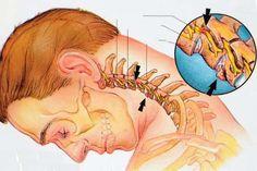 Eight exercises against cervical degenerative disc disease / Medical Art Headache And Dizziness, Migraine Relief, Pain Relief, Cervical Spine Exercises, Neck Exercises, Neck Stretches, Cervical Disc, Floaters Eye, Degenerative Disc Disease