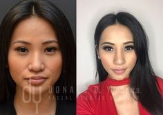 Before and After revision Asian Rhinoplasty with rib cartilage. 2 weeks post op pictures. #Rhinoplasty #septoplasty #nosejob #plasticsurgery #drdonyoo #beverlyhills