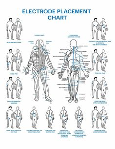 1000 Images About T E N S Pad Placements On Pinterest Leg Pain Sciatica And Charts