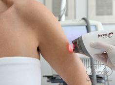 Fotoodmładzanie skóry laserem Fraxel.