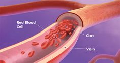 Can You Get a Blood Clot While on Xarelto?