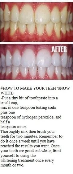 How To Make Your Teeth Super White