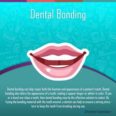 Improve the appearance of discolored or chipped teeth with the latest dental bonding procedures from Bellevue Implant & Cosmetic Dentistry. Teeth Bonding, Dental Bonding, Veneers Teeth, Dental Veneers, Preventive Dentistry, Dental Fillings, Teeth Straightening, Dental Cosmetics