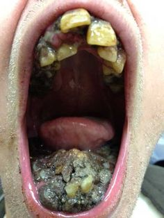 Rotten mouth caused by not brushing (#1) - The Weird Picture Archive