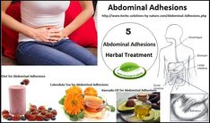 5 Herbal Treatments for Abdominal Adhesions