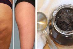 2-ingredients-anti-cellulite-paste-the-magic-cellulite-eraser