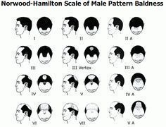 Hair Loss Remedies Norwood Hamilton Scale Of Male Pattern Baldness Hair Remedies For Growth Hair Loss Cure Hair Loss Men