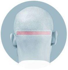Streifenentnahme (FUT: Follicular Unit Transplantation)