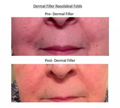 Dermal filler nasolabial folds