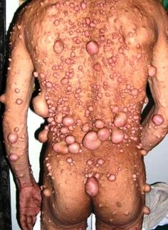 Neurofibromatosis Pictures, Type 1,2, What is, Symptoms, Treatmen. It is a genetic disorder that mainly affects nerves, other parts of the body.
