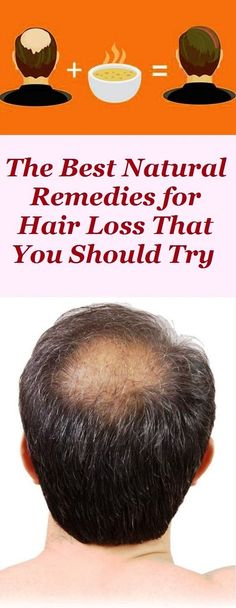 The Best Natural Remedies for Hair Loss That You Should Try Hair Loss Remedies, Healthy Hair, Natural Health, Natural Remedies, Health Fitness, Strong, Good Things, Mans Health, Nature