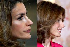 Cosmetic Procedures, Queen Letizia, Plastic Surgery, Fashion Dresses, Skin Care, Reyes, Beauty Ideas, Gossip, Annie