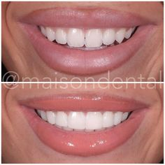 After Invisalign and teeth whitening we achieved the top picture ✨ followed then by composite edge bonding on 10 upper teeth (bottom…