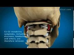 Prolotherapy for C1-C2 Instability Symptoms (Dizziness, Instability, Fullness in Ears, Ect.).