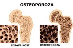 osteoporoza-Lumbalis-centar-