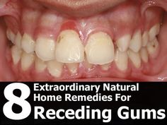 8 Extraordinary Natural Home Remedies For Receding Gums