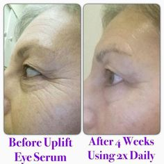 Our uplift eye serum has worked wonders on fine lines and wrinkles! It is truly a miracle product!