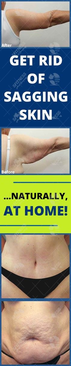 Six Amazing remedies for sagging skin at home — Health Care