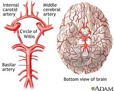 Circle of Willis is the joining area of several arteries at the bottom (inferior) side of the brain. At the Circle of Willis, the internal carotid arteries branch into smaller arteries that supply oxygenated blood to over 80% of the cerebrum. Blockage of blood flow to the brain for even a short period of time can be disastrous and cause brain damage or even death.