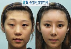 South Korean Cosmetic Surgery Today, we have 61 more before-and-after images of cosmetic surgery from South Korea. Since they all seem to be advertisements from clinics and hospitals,