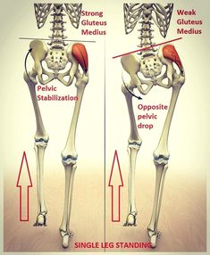 Prevalence of Gluteus Medius Weakness with Nonspecific Low Back Pain Brent Brookbush Muscle Anatomy, Body Anatomy, Hip Pain, Neck Pain, Muscle Imbalance, Gluteus Medius, Spine Health, Back Pain Exercises, Scoliosis Exercises