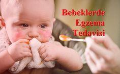 Bebeklerde Egzama Tedavisi İçin Nasıl Önlemler Alınabilir