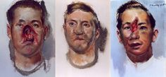 Henry Tonks studied medicine and was a successful doctor; he regularly took drawing lessons and had a passion for art; during the first world war he produced pastel drawings of facial injuries suffered by soldiers for documentation purposes; as the war carried on he become an 'official war artist': after the war he went on to teach at Slade School of Art.    Here are a selection of his drawings. Obviously the primitive and non-exacting weaponry of the first world war led to espec